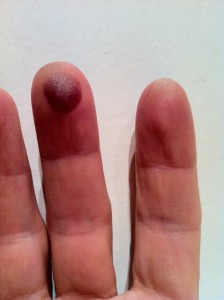 red hot chili peppers practice blood blister bass player